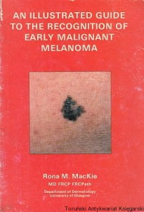 An Illustrated guide to the recognition of early malignant melanoma / Rona M. MacKie